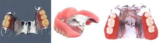 コバルトクローム床義歯
